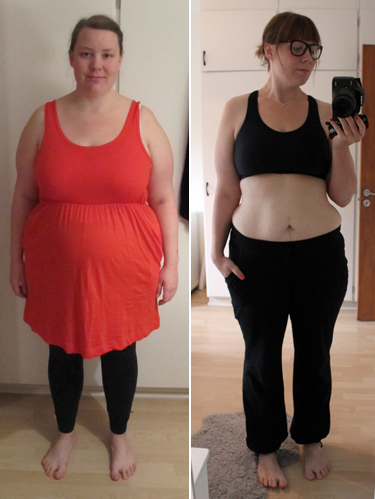efter gastric bypass operation